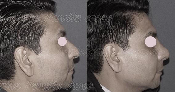 rinoplastia doctor adrian peralta