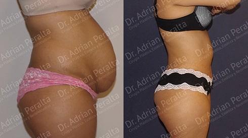 abdominoplastia 1