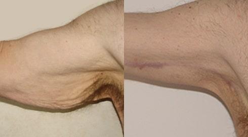 braquioplastia 3
